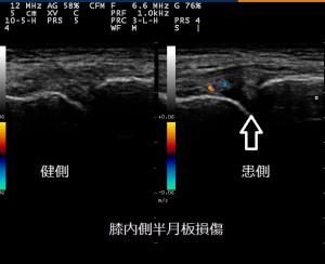 膝内側半月板損傷